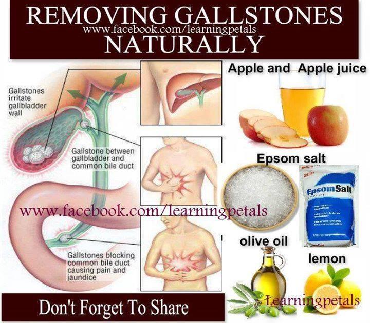 Gallbladder Naturally Stone Removal