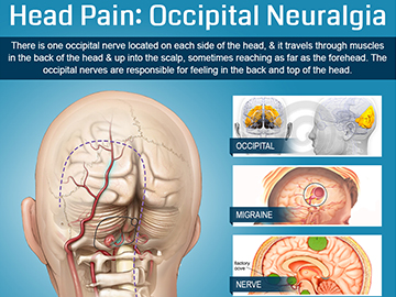 Head-Pain-Occipital-Neuralgia-by-Orange-County-Pain-Clinics-Thumb